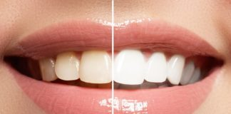 4 Tips For Finding The Best Dentist Who Whitens Teeth