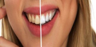 All You Need To Know About Teeth Whitening Procedures