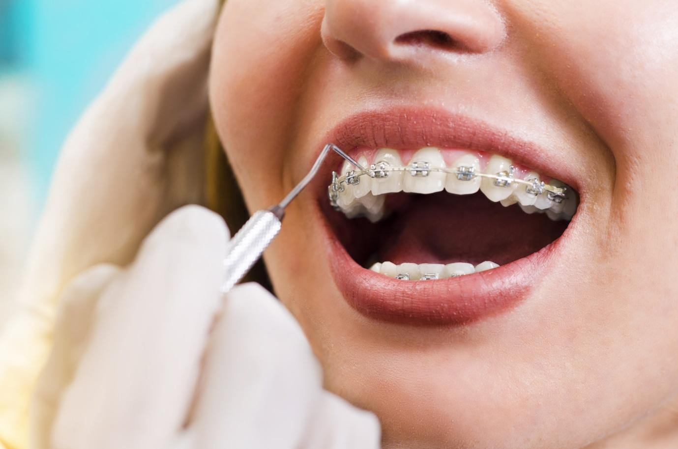 Common Mistakes with Braces Care