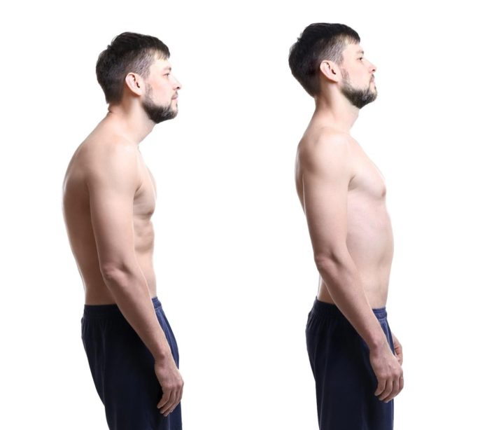 Is Your Pain From Bad Posture