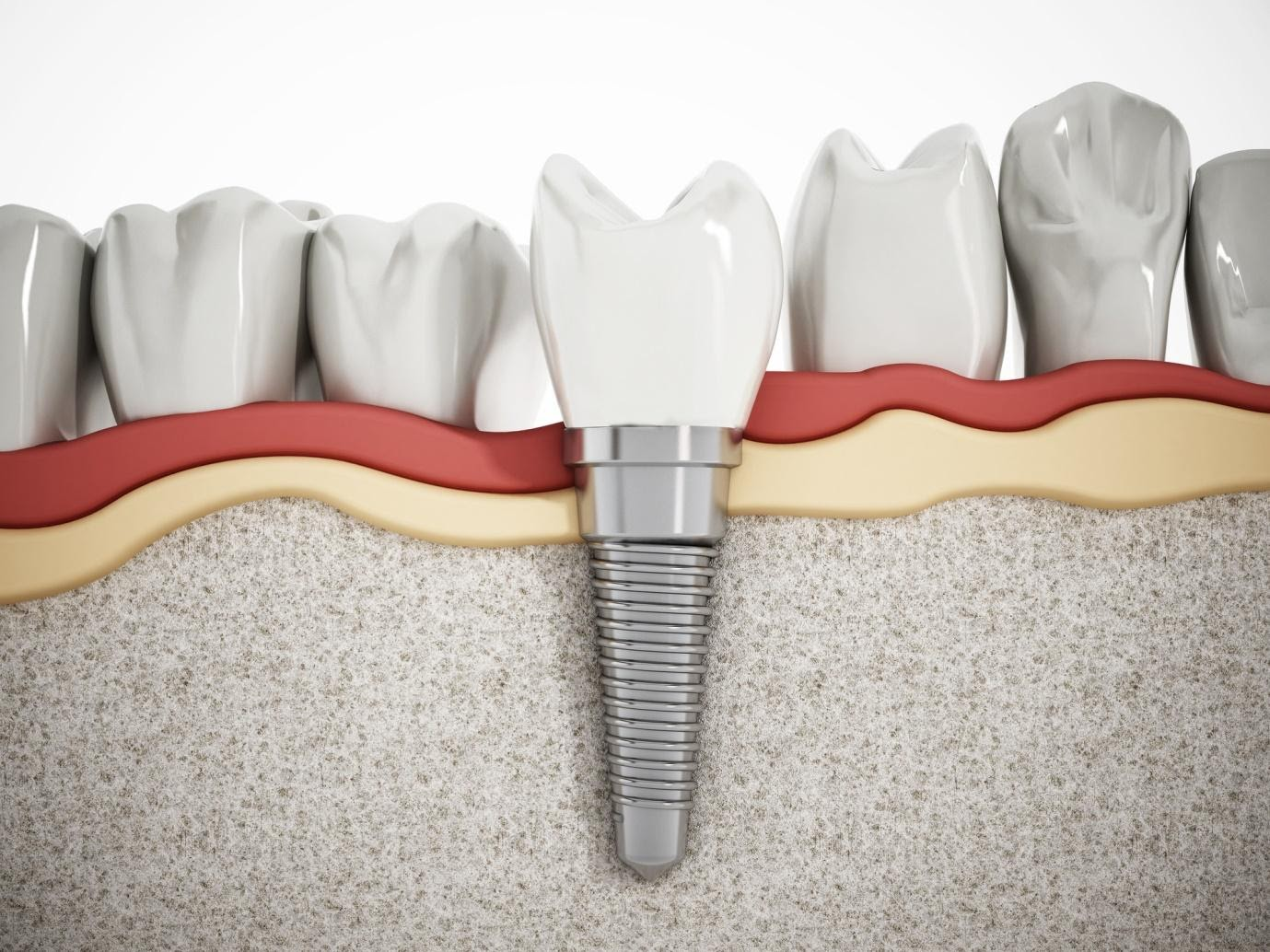 The Different Options for Replacing Missing Teeth
