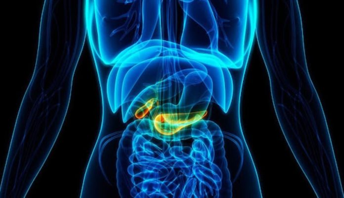 Pancreatic cancer and its symptoms
