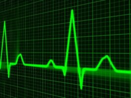 Have an Irregular Heartbeat?